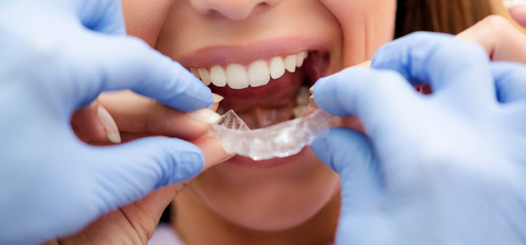 Invisalign or Braces; Which is Better?